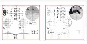 Galaxy - автоматические периметры